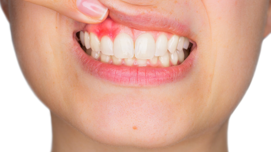 Do You Have Sensitive Teeth Follow These Tips!